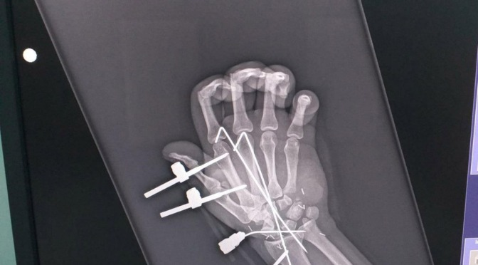 Realizan médicos del Hospital Rovirosa exitoso reimplante de mano